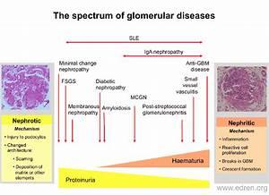 Glomerulonephritis Diagram
