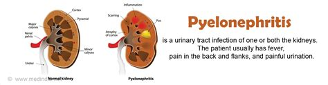 pyelonephritis causes symptoms diagnosis treatment
