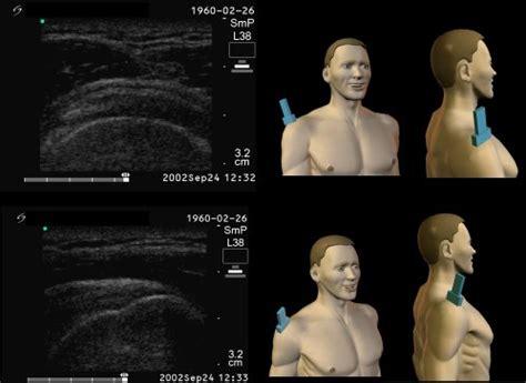 Shoulder Ultrasound for Clinicians | ShoulderDoc