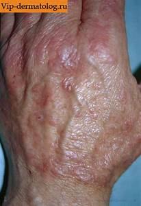 Псориаз рук ног лечение