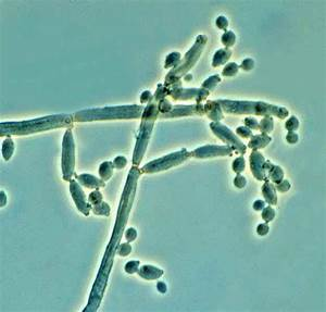 Global Indoor Health Network - Cladosporium