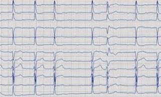 herzmuskelschwäche kardiologische gemeinschaftspraxis dr med m castrucci dr med m weber münster für