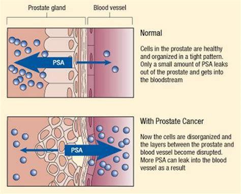 psa prostate spesific antigen test interpretation with