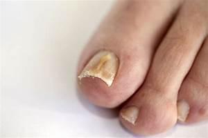Грибок ногтей чем лечить мази