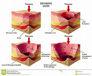 Decubitus Ulcer Stock Vector  Illustration Of Erythema
