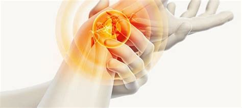 Can sugar injections help with Carpal Tunnel Syndrome ...