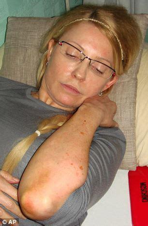 Yulia Tymoshenko Prison Pictures Show Former Ukrainian Pm