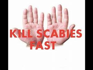 Scabies Home Treatment Tricks Review Kill Scabies Fast