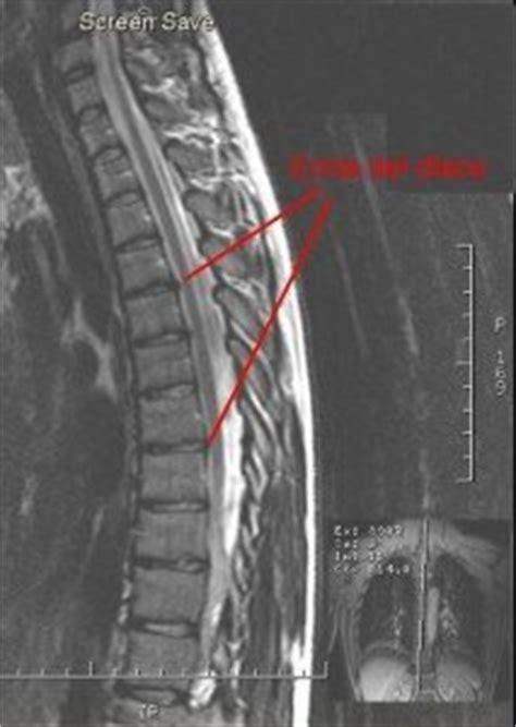 dolor dorsal intercostal izquierdo  derecho