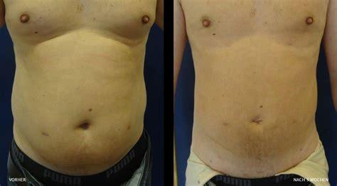 fettabsaugung liposuktion haus der schoenheit salzburg