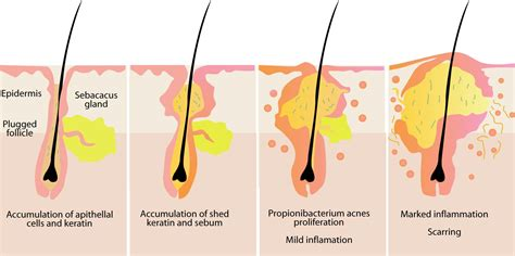 pilonidal cyst diagram acne and blemishes explained