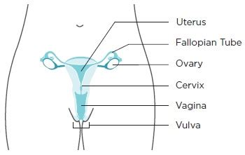 Basic Information About Vaginal and Vulvar Cancers | CDC