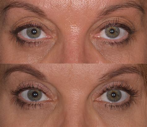 upper eyelid surgery center  excellence  eye care