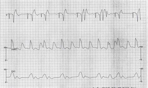 premature ventricular contraction ekg examples wikidoc