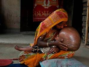 Child Born in India with the world's largest Head - YouTube