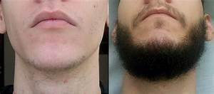 Middel voor baardgroei
