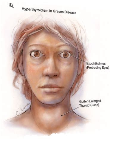 Graves' Disease  Dave Montgomery Md Official Website. Cardinal Signs. Assisted Living Signs. Anemia Signs Of Stroke. Heart Condition Signs. Cha2ds2 Vasc Signs Of Stroke. Ergonomics Signs Of Stroke. Disorder Signs. Doberman Signs