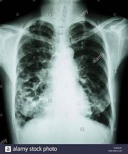 """""""Bronchiectasis"""" X-ray chest show : multiple lung bleb and ..."""