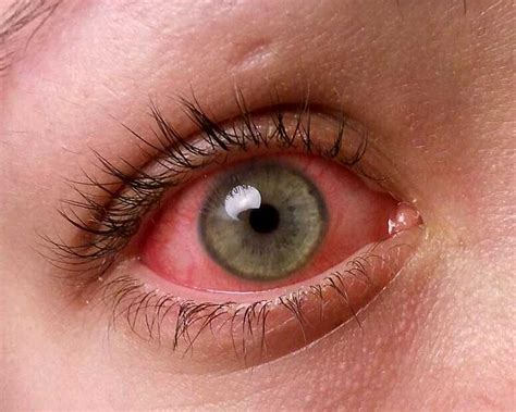 Conjunctivitis  Symptoms, Treatment, Pictures, Causes