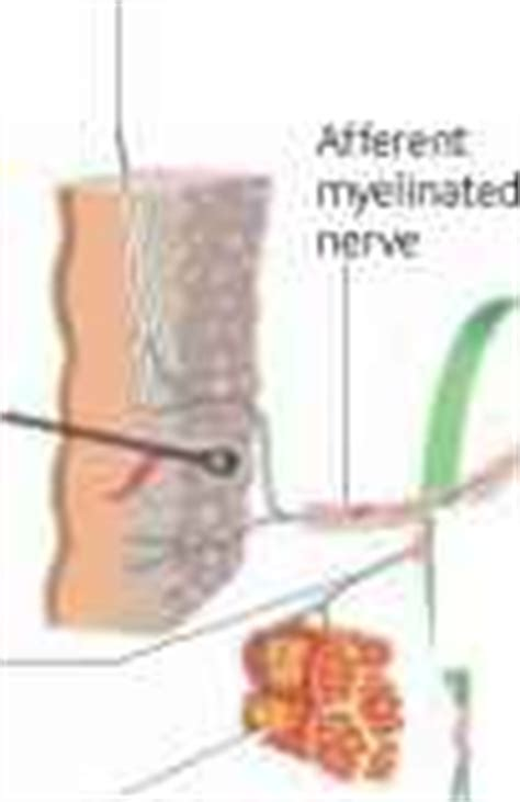 allodynia  multiple sclerosis related multiple