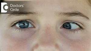 Can Exotropia Be Cured With Eye Drops Or Medicines