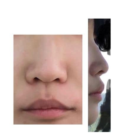鼻 左右 非対称