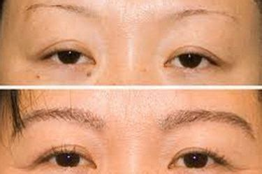 Rogaine for Eyebrows – Grow Thicker, Fuller, Longer Brow