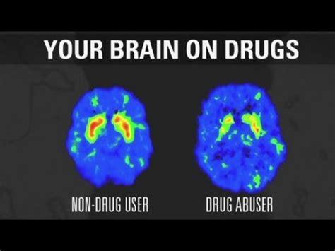 addiction   brain youtube