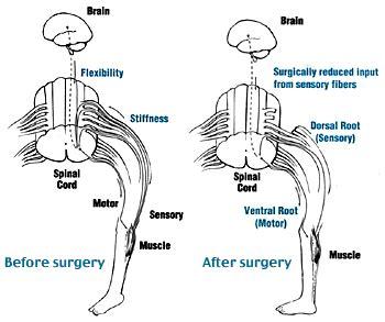 Selective Dorsal Rhizotomy in Cerebral Palsy- Selection