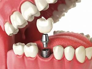 What To Expect From Bone Grafting For Dental Implants