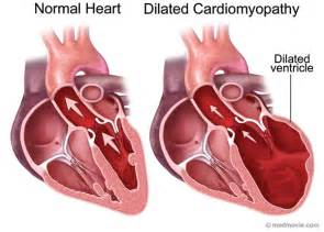 Dilated Cardiomyopathy Genetic Testing - Genetic Testing Company - The ...  Dilated cardiomyopathy Cardiomyopathy