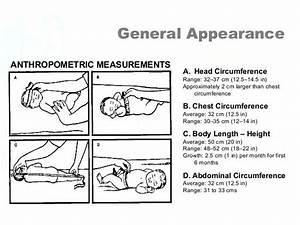 General Appearance A  Head Circumference Range  32 U201337 Cm