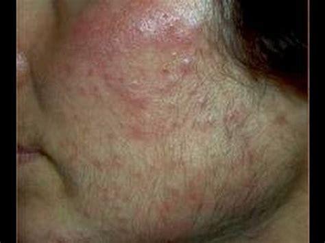 DermTV - Acne and Facial Hair [DermTV.com Epi #334] - YouTube