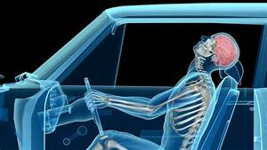 The Serious Long Term Effects Of Whiplash After A Car Accident