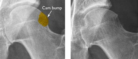 cam femoral left impingement ray femoroacetabular head bump surgery after right aaos shaved during down been orthoinfo treatment shows link