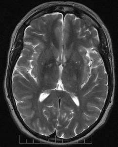 Concussion Brain Mri U0026 39 S  Ct Scans  And Eeg