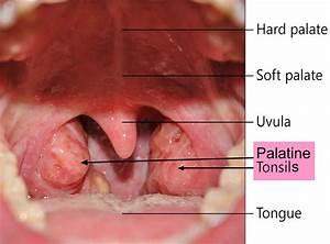 Tonsil Stones Causes  Symptoms  Diagnosis And Tonsil