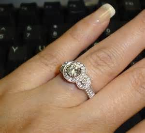 my engagement ring i m allergic to my wedding ring