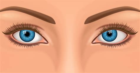Strabismus And Crossed Eyes Explained - AllAboutVision.com