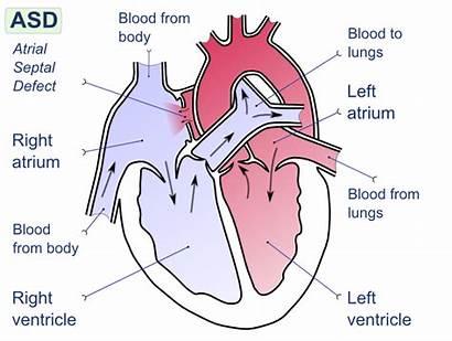 Shunt Right Left Atrial Septal Defect Ventricular