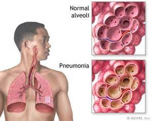 Pneumonia is a breathing (respiratory) condition in which there is an ... Pneumonia