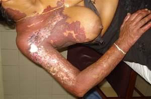 Non Involuting Hemangioma With Ulcerated Areas