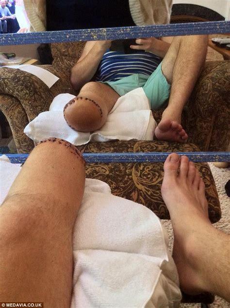 extreme sportsman jake pleban creates pre amputation