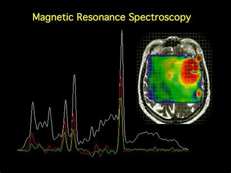 MRI BLOG: Magnetic Resonance Spectroscopy