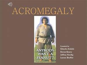 Acromegaly Power Point Presentation