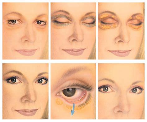 Eyelid Surgery (blepharoplasty) Jacksonville, Ponte Vedra, Fl