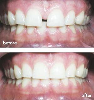 coastclear aligners  tampa coast dental university