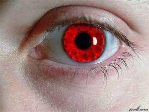 Rare Eye Color | Red Eye Color