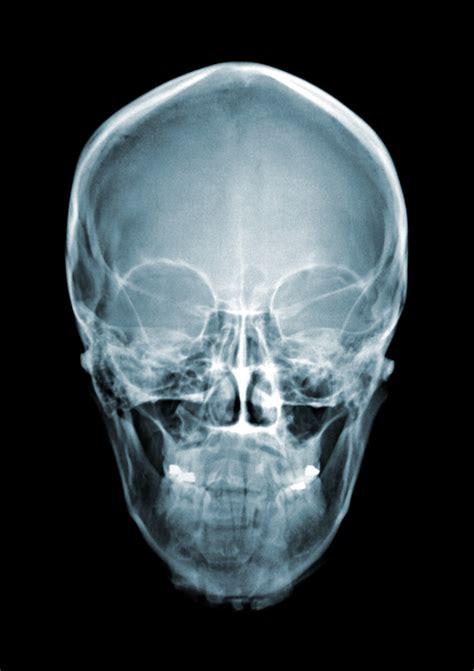 skull xray forensic forensics ray human science head unit rays different skulls body radiology talk google istock types imaging anatomy