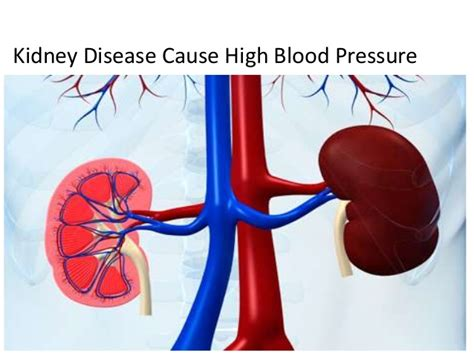 light headed blood pressure causes of high blood pressure or hypertension